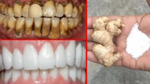 How to naturally whiten your yellow teeth at home in 2 minutes